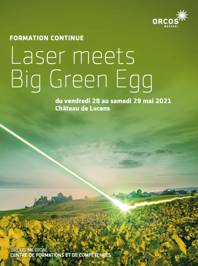 LASER MEETS BIG GREEN EGG (französisch)